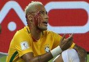برخورد خونین نیمار با بازیکن بولیوی