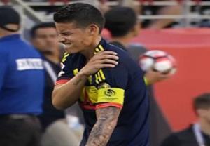 مصدومیت و تعویض خامس رودریگز در بازی مقابل آمریکا