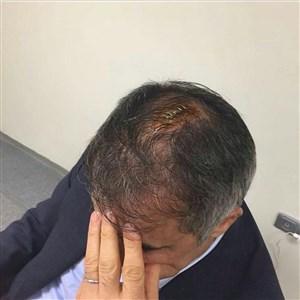 لحظه شکسته شدن سر سنول گونش در دربی استانبول