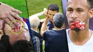 مصدومیتهای خونینستارگان فوتبال در مستطیلسبز