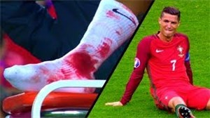 مصدومیت های فراموش نشدنی جهان فوتبال