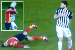 مصدومیت وحشتناک در فوتبال ایتالیا (عکس)