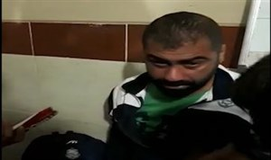 مازیار زارع مربی ملوان بعد از تهاجم با اسپری فلفل به صورتش